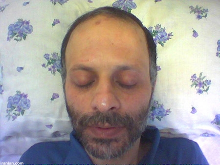 Journalist Ganji during his hunger strike in July
